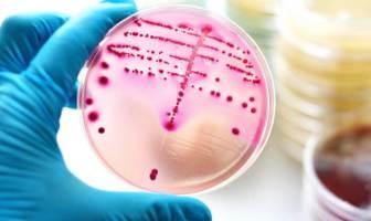 bakteri üremesi