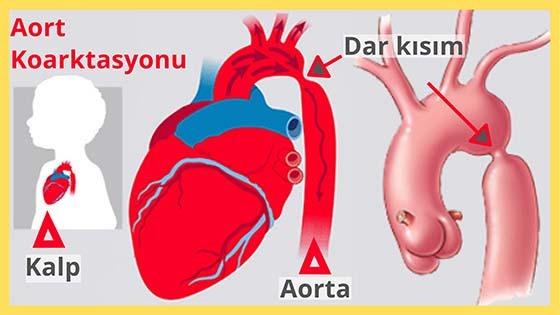 Aort Koarktasyonu