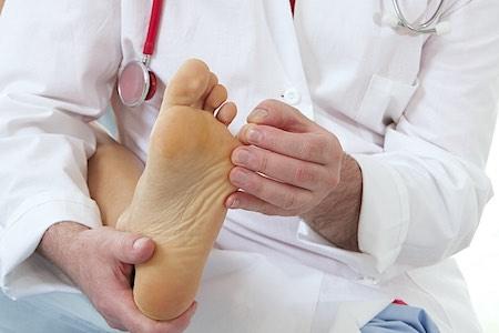 Un symptôme de la mycose des pieds