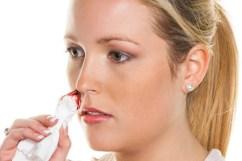 Eine junge Frau blutet aus ihrer Nase. Stoppt Nasen bluten mit einem Taschentuch.