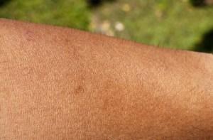Un exemple de peau humaine