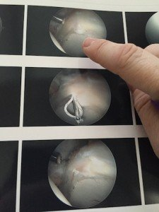 Labrum tear (top) and suturing (middle and bottom)