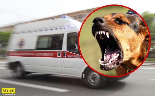 Рівне: Собака напала на маленьку дівчинку – дитину прооперували