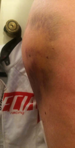 Hematoma, a few days before camp in March.
