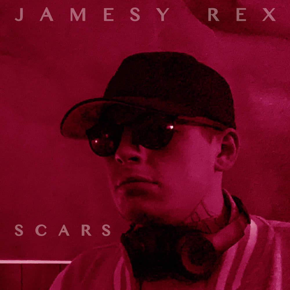 Jamesy Rex Scars