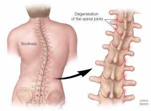 scoliosi-colonna-vertebrale