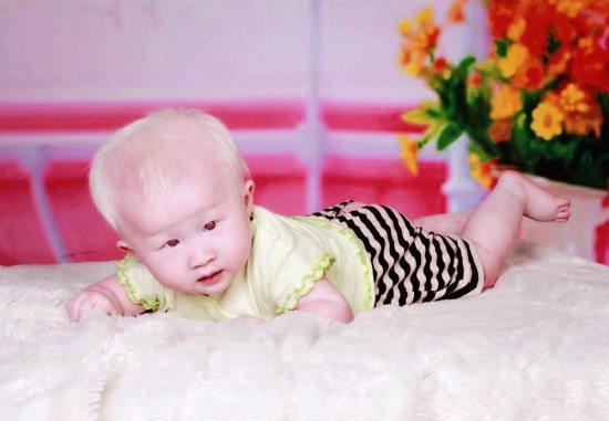 albinism4