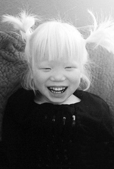albinism1
