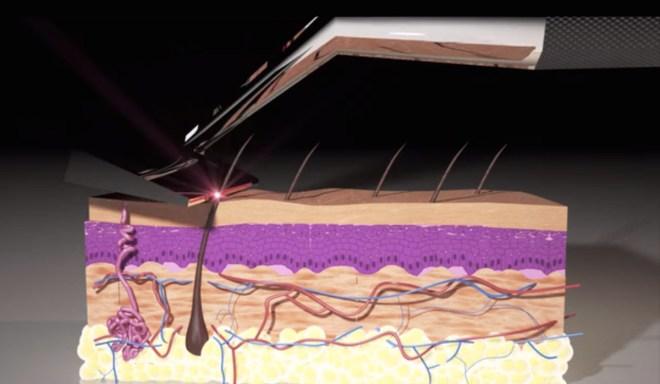 skarp-razor-tecnica-laser-afeitado