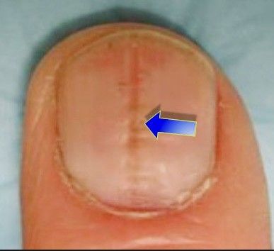 Keyword Ridges On Your Nails Have A Road Do You Ever Wonder Why