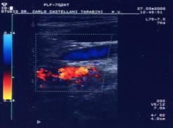 visita-angiologica-ecodoppler-castellani-tarabini-20