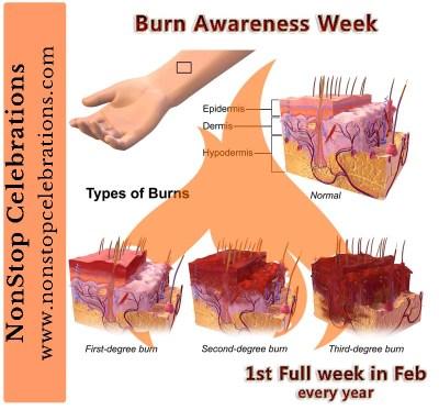 Burn Awareness Week is the first full week of February
