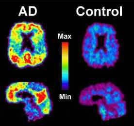 This image shows a PiB-PET scan of a patient with Alzheimer's disease on the left and an elderly person with normal memory on the right. Areas of red and yellow show high concentrations of PiB in the brain and suggest high amounts of amyloid deposits in these areas. Image University of Pittsburgh, PET Amyloid Imaging Group