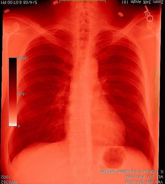 Chest Xray courtesy of mark baard, flickr creative commons