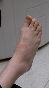 shows a foot with a visible scar across the bridge, needles sticking out of the top and sides of the foot.