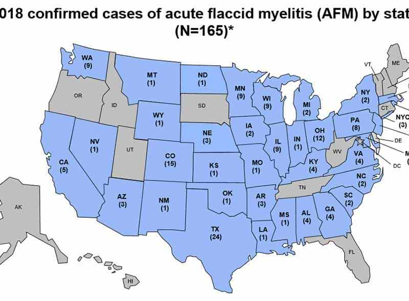 shows a total of 165 cases of AFM across the US