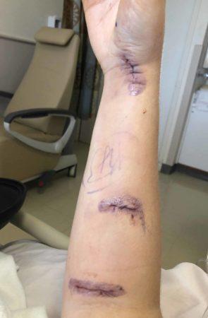 Surgery scars on an arm