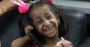 توقف وزنها عند 5 كيلو وطولها 60 سم.. طفلة تناشد الرئيس لمساعدتها على المعيشة