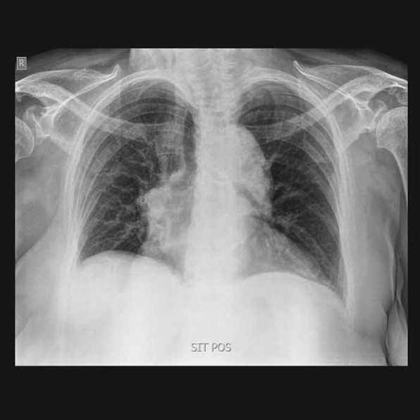 Ακτινογραφίες κατ' οίκον - Νοσηλεία Τώρα -5