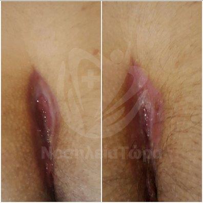 Θεραπεία Κύστης Κόκκυγα (5)