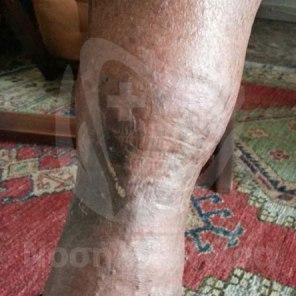Θεραπεία Μολυσμένων Κάτω Άκρων (5)