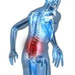 El Peso extra puede dañar tu Espalda