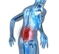 Dolor de espalda por sobrepeso
