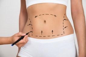 【 Liposucción para adelgazar 】Qué es | Riesgos y cuidados posteriores