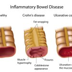 Inflammatory_Bowel_Disease-_Crohns_and_Ulcerative_Colitis