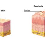 Psorias Diagram