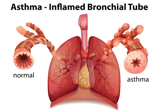 asthma inflamed tube