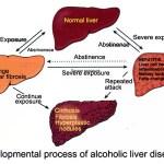 Alcoholic Liver Process