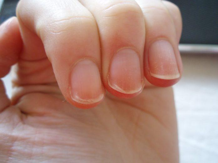 Suas unhas estão sempre dividindo ou quebrando? Aqui está o que seu corpo está tentando lhe dizer
