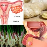 Apresentamos esta poderosa receita natural que trata o câncer do ovário, cólon e próstata
