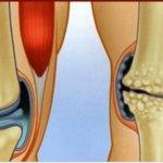 6 remédios anti-inflamatórios naturais para tratar e curar a dor comum e no joelho