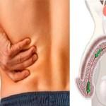 12 Principais sintomas de câncer de próstata que nenhum homem deve ignorar!