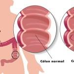 Sintomas perigosos de câncer de Cólon que você não deve ignorar.