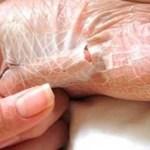 Remédio natural que elimina os calos e fungos dos pés em 2 dias.
