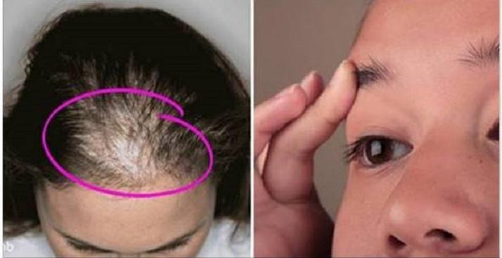 Estas receitas vão fazer seus cabelos e sobrancelhas crescerem mais rápido e com volume