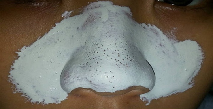 Livre-se de vez dos cravos e pontos negros? tratamento eficaz com apenas 2 ingredientes