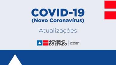 Photo of Bahia registra novos casos de coronavírus; agora são 84