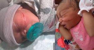 bisturi-afecta-rostro-de-bebe-en-medio-de-cesarea