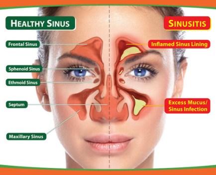 raffreddore sinusite