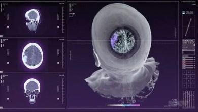 Photo of Screen Graphics: Doctor Stranger