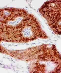 ihcDirect EMA IHC stain, FFPE breast tissue, DAB chromogen