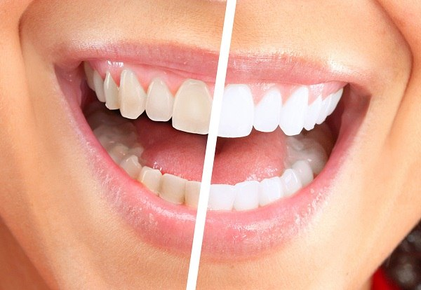 How To Get Whiter Teeth Naturally Fast At Home