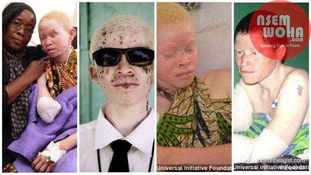 tanzania albino woes