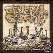 GENERAL SURGERY (Swe):