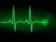 EKG,heart beat,flat line