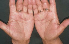 Hands - both 18 and 81 , half circle